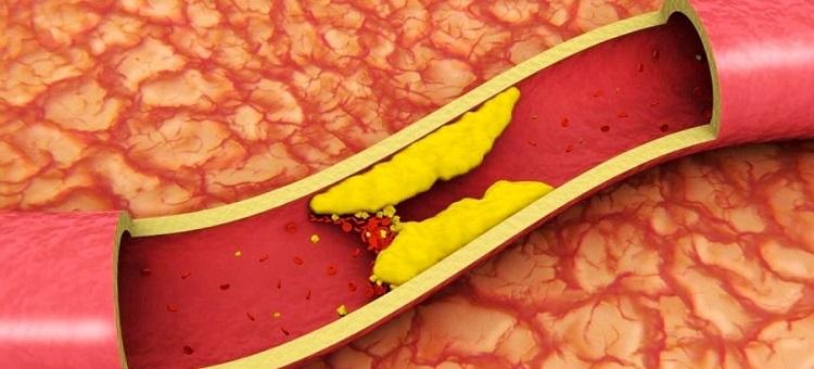 Снежная ягода рецепты для суставов отзывы о протезировании тазобедренных суставов в чебоксарах